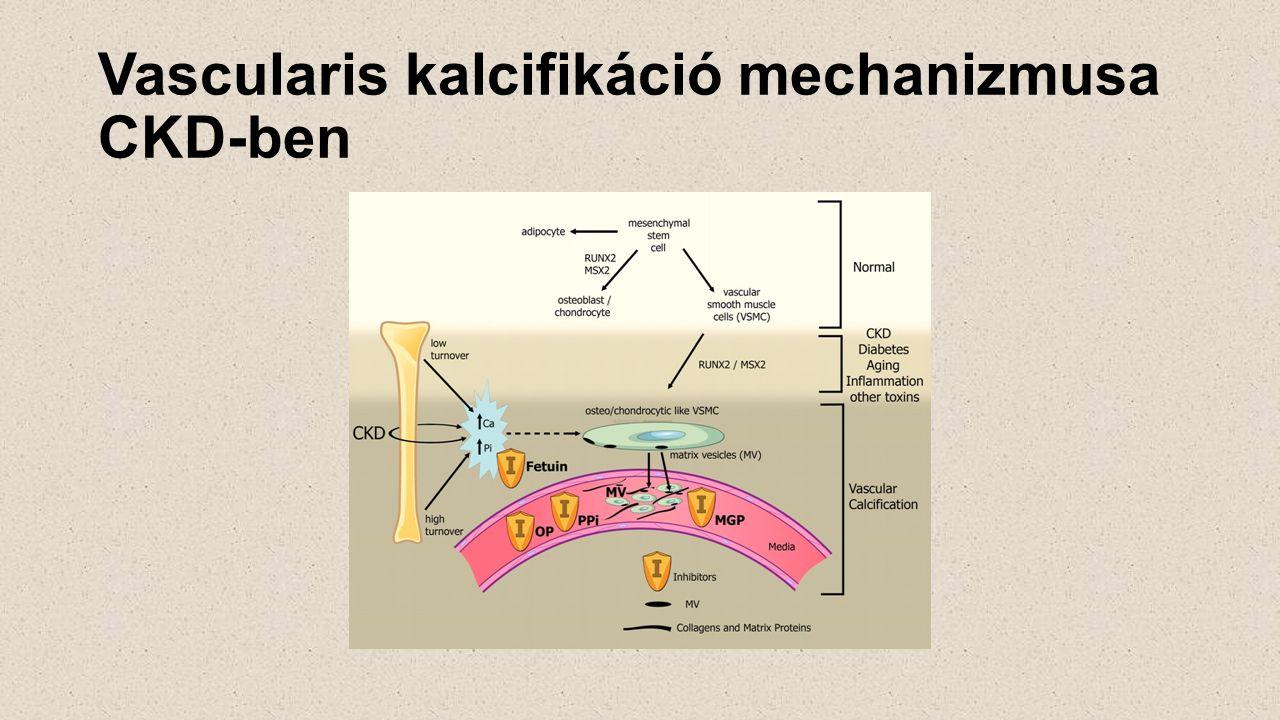 Vascularis kalcifikáció mechanizmusa CKD-ben