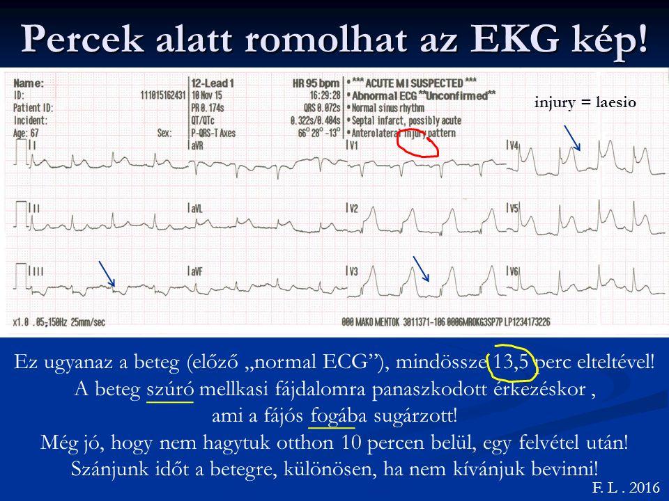 Percek alatt romolhat az EKG kép.F. L.