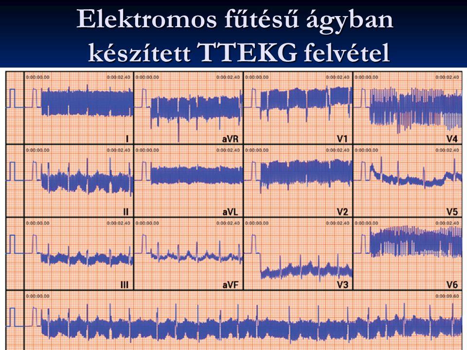 Elektromos fűtésű ágyban készített TTEKG felvétel F. L. 2016