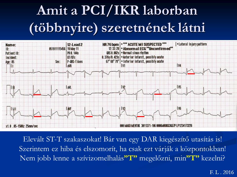 Amit a PCI/IKR laborban (többnyire) szeretnének látni F.