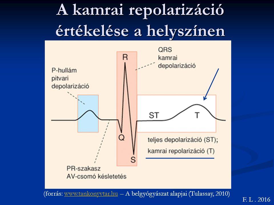A szívizom ischaemia jelei F.L. 2016 Szubendokardiális (forrás: Dr.