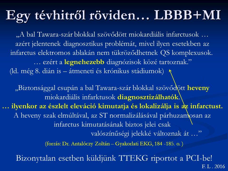 Egy tévhitről röviden… LBBB+MI F.L. 2016 (forrás: Dr.