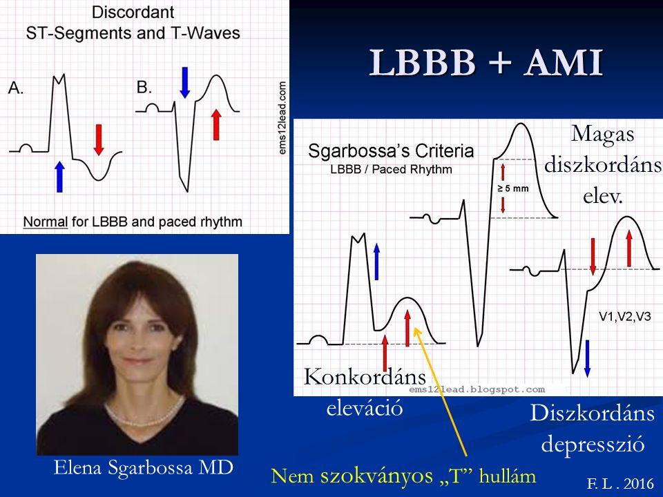 LBBB + AMI Konkordáns eleváció F.L. 2016 Elena Sgarbossa MD Magas diszkordáns elev.