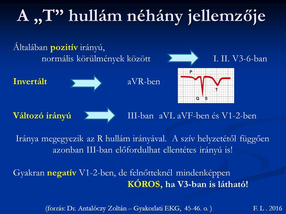 """A """"T hullám néhány jellemzője F.L. 2016 Általában pozitív irányú, normális körülmények között I."""
