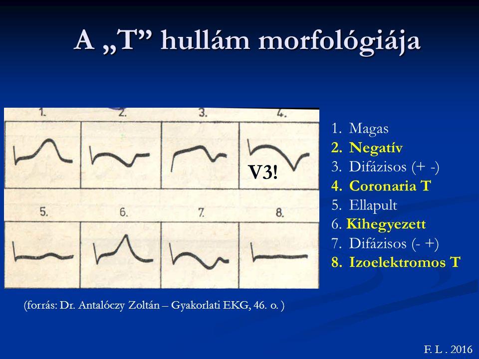 """A """"T hullám morfológiája F.L. 2016 (forrás: Dr. Antalóczy Zoltán – Gyakorlati EKG, 46."""