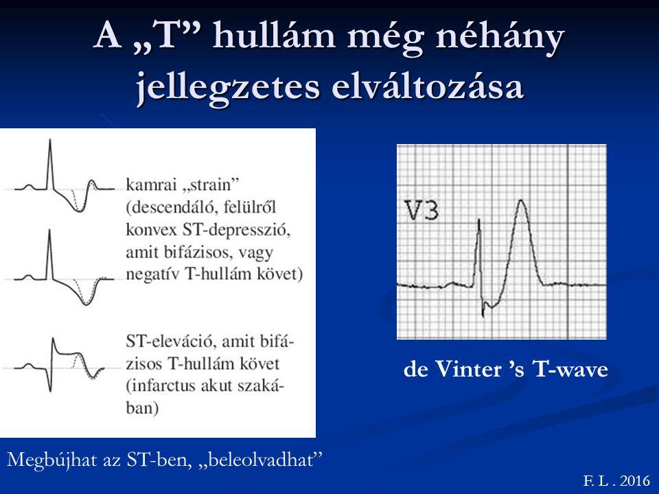 """A """"T hullám még néhány jellegzetes elváltozása F."""
