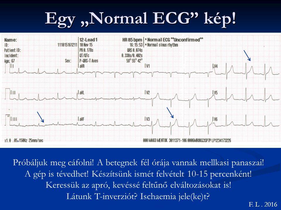 """Egy """"Normal ECG kép.F. L. 2016 Próbáljuk meg cáfolni."""