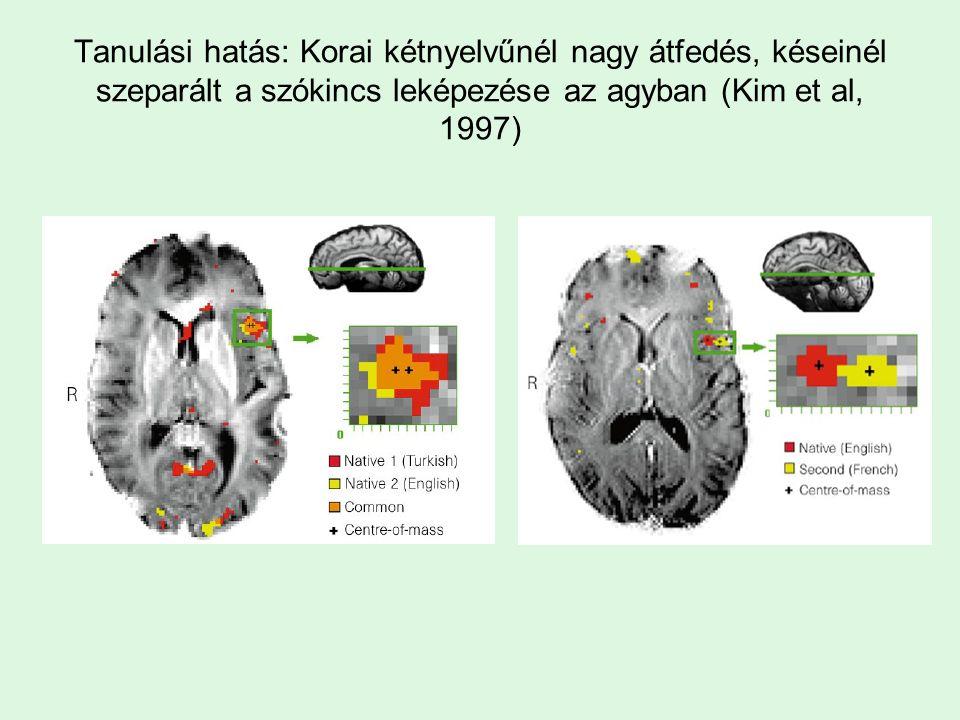 A szavak jelentésviszonyai és az agyi képviselet (Pulvermüller): van egy közös rész, a Wernicke halántéki terület, s a szó jelentésének megfelelő másodlagos rész Cselekvés szavak: dob, rúg, fog Vizuális szavak: néz, lát, tekint, bámul Akciós potenciálok az agyban Közös terület: halántéklebeny Látási: tarkó, mozgási: mozgató lebeny