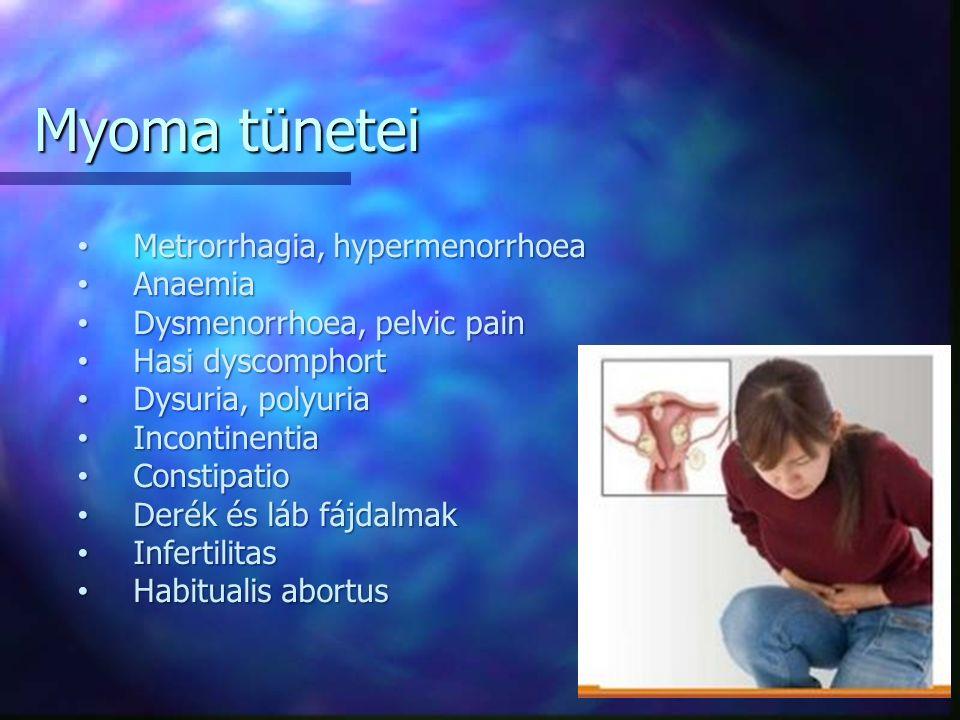 Metrorrhagia, hypermenorrhoea Metrorrhagia, hypermenorrhoea Anaemia Anaemia Dysmenorrhoea, pelvic pain Dysmenorrhoea, pelvic pain Hasi dyscomphort Hasi dyscomphort Dysuria, polyuria Dysuria, polyuria Incontinentia Incontinentia Constipatio Constipatio Derék és láb fájdalmak Derék és láb fájdalmak Infertilitas Infertilitas Habitualis abortus Habitualis abortus Myoma tünetei