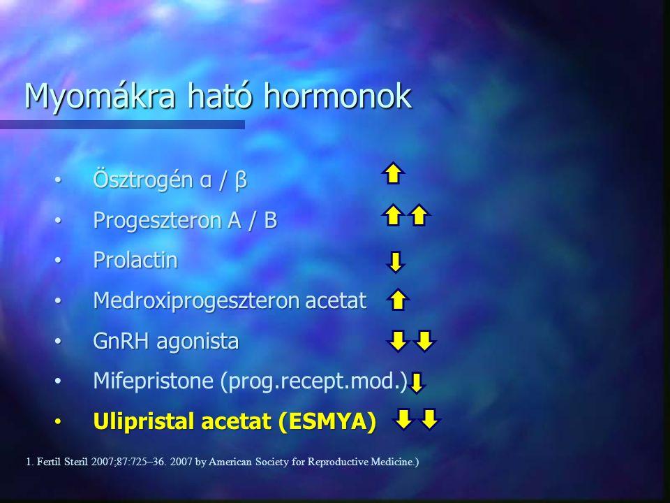 Ösztrogén α / β Ösztrogén α / β Progeszteron A / B Progeszteron A / B Prolactin Prolactin Medroxiprogeszteron acetat Medroxiprogeszteron acetat GnRH agonista GnRH agonista Mifepristone (prog.recept.mod.) Ulipristal acetat (ESMYA) Ulipristal acetat (ESMYA) Myomákra ható hormonok 1.
