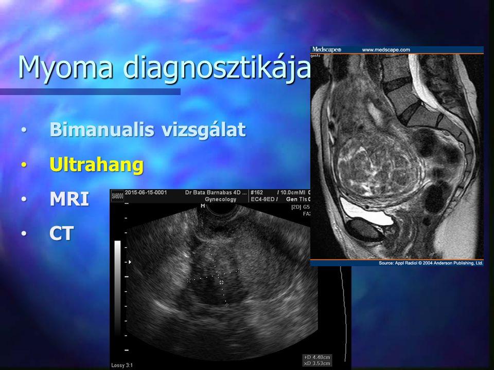 Bimanualis vizsgálat Bimanualis vizsgálat Ultrahang Ultrahang MRI MRI CT CT Myoma diagnosztikája