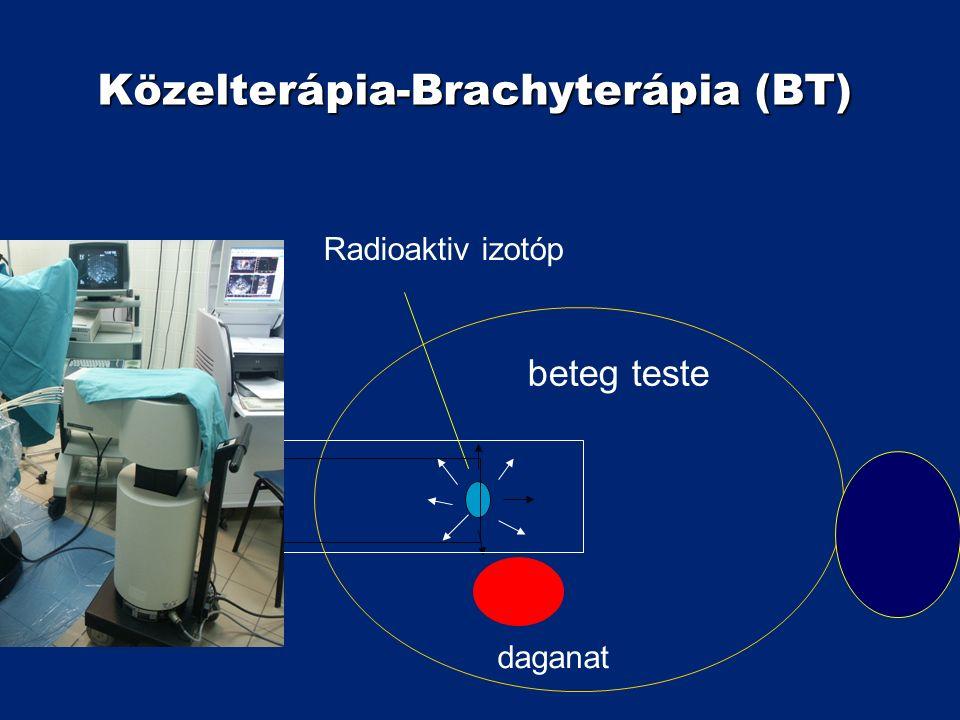 Közelterápia-Brachyterápia (BT) Radioaktiv izotóp beteg teste Applikátor daganat