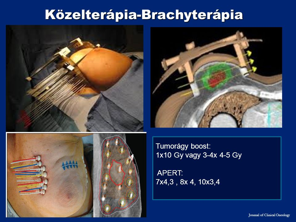 Közelterápia-Brachyterápia Journal of Clinical Oncology Tumorágy boost: 1x10 Gy vagy 3-4x 4-5 Gy APERT: 7x4,3, 8x 4, 10x3,4