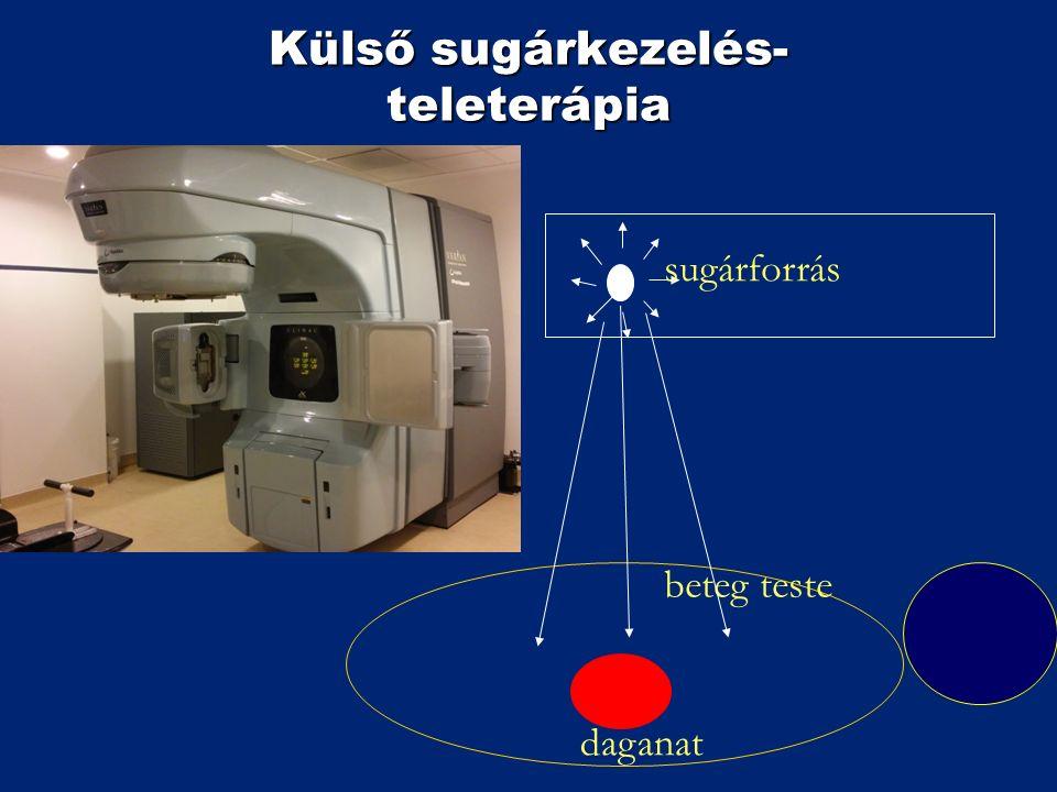 Külső sugárkezelés- teleterápia beteg teste daganat sugárforrás