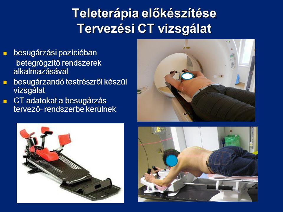 Teleterápia előkészítése Tervezési CT vizsgálat besugárzási pozícióban betegrögzítő rendszerek alkalmazásával besugárzandó testrészről készül vizsgálat CT adatokat a besugárzás tervező- rendszerbe kerülnek