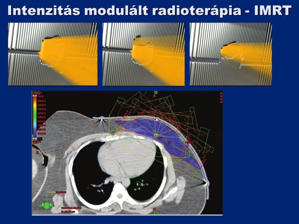 Intenzitás modulált radioterápia - IMRT