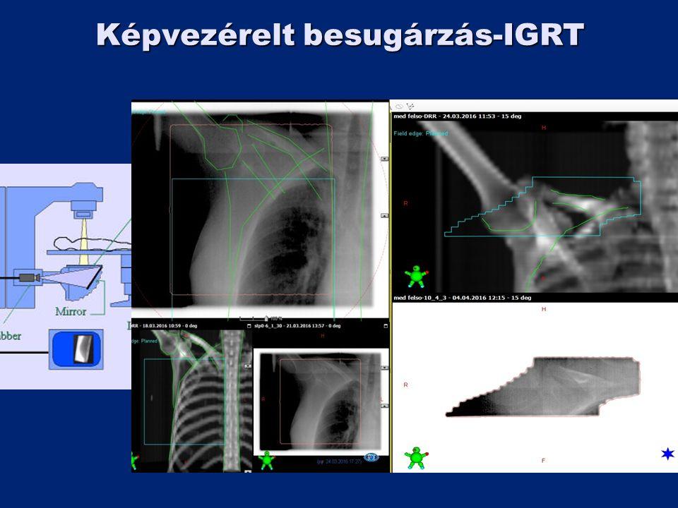 Képvezérelt besugárzás-IGRT
