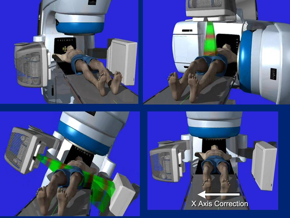 IGRT cone beam CT-vel