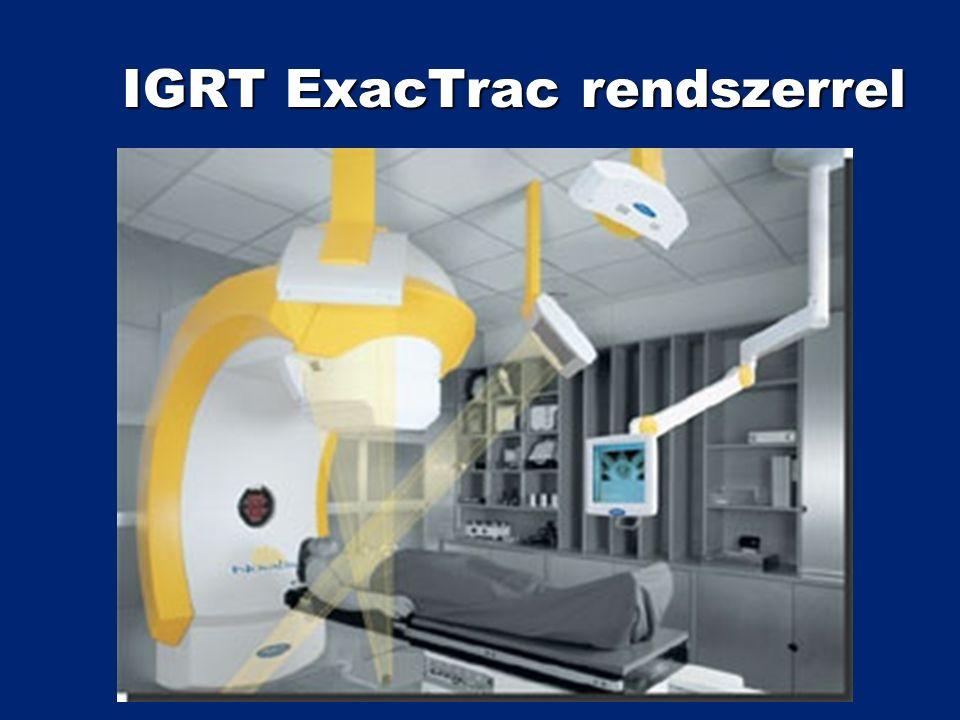 IGRT ExacTrac rendszerrel