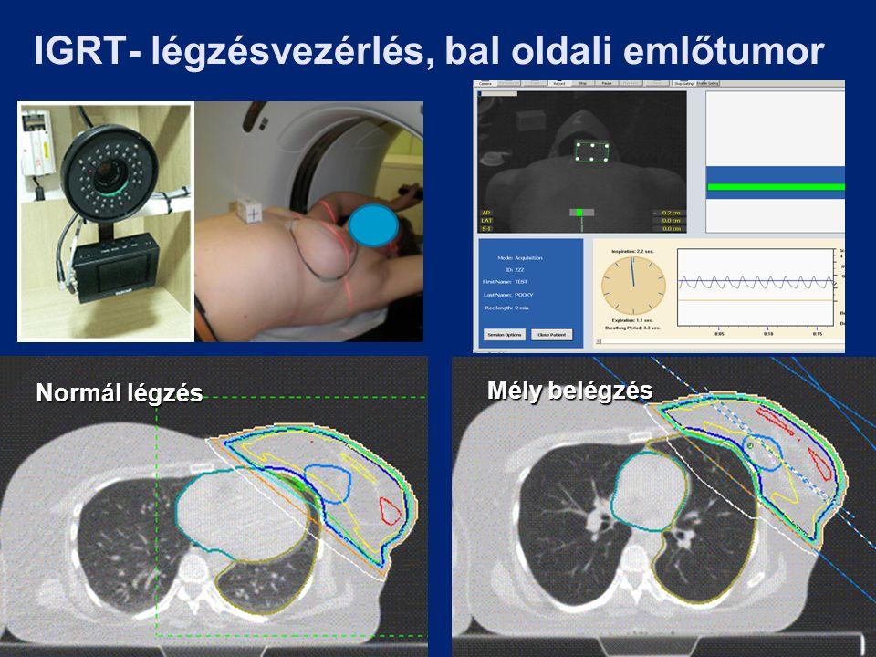 IGRT- légzésvezérlés, bal oldali emlőtumor Normál légzés Mély belégzés