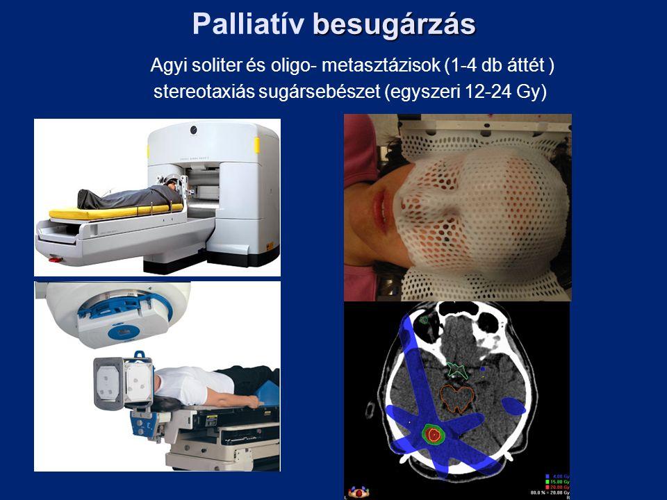 besugárzás Palliatív besugárzás Agyi soliter és oligo- metasztázisok (1-4 db áttét ) stereotaxiás sugársebészet (egyszeri 12-24 Gy)