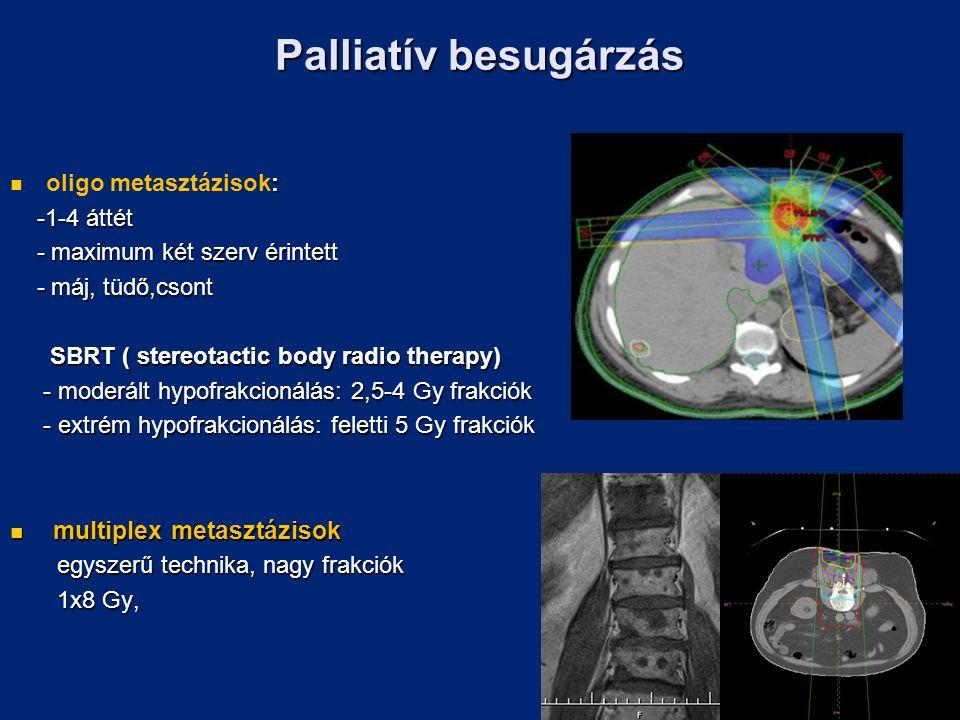 Palliatív besugárzás : oligo metasztázisok: -1-4 áttét -1-4 áttét - maximum két szerv érintett - maximum két szerv érintett - máj, tüdő,csont - máj, tüdő,csont SBRT ( stereotactic body radio therapy) SBRT ( stereotactic body radio therapy) - moderált hypofrakcionálás: 2,5-4 Gy frakciók - moderált hypofrakcionálás: 2,5-4 Gy frakciók - extrém hypofrakcionálás: feletti 5 Gy frakciók - extrém hypofrakcionálás: feletti 5 Gy frakciók multiplex metasztázisok multiplex metasztázisok egyszerű technika, nagy frakciók egyszerű technika, nagy frakciók 1x8 Gy, 1x8 Gy,