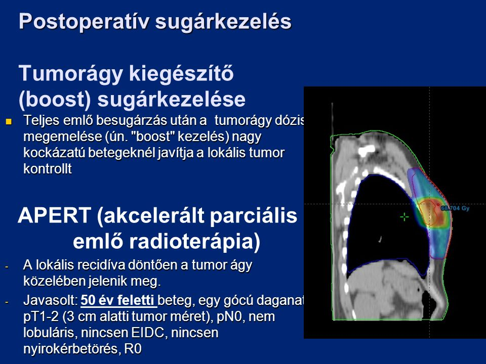 Postoperatív sugárkezelés Postoperatív sugárkezelés Tumorágy kiegészítő (boost) sugárkezelése Teljes emlő besugárzás után a tumorágy dózis megemelése (ún.