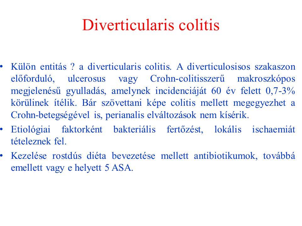 Diverticularis colitis Külön entitás . a diverticularis colitis.