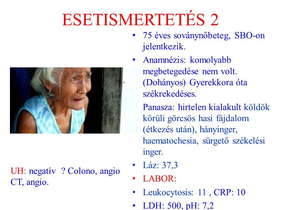 ESETISMERTETÉS 2 75 éves soványnőbeteg, SBO-on jelentkezik.