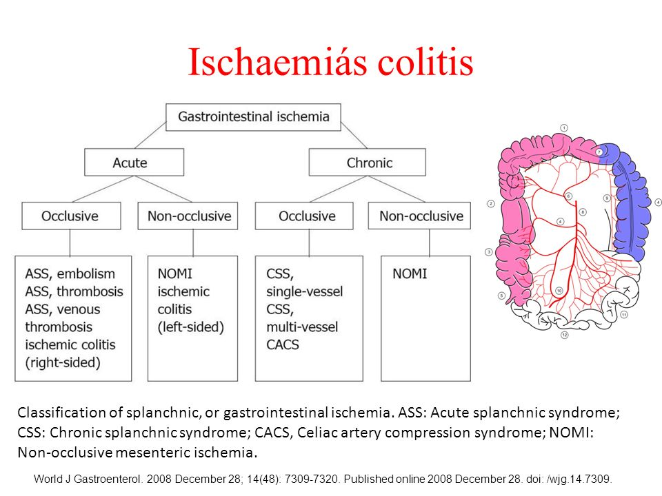 Classification of splanchnic, or gastrointestinal ischemia. ASS: Acute splanchnic syndrome; CSS: Chronic splanchnic syndrome; CACS, Celiac artery comp