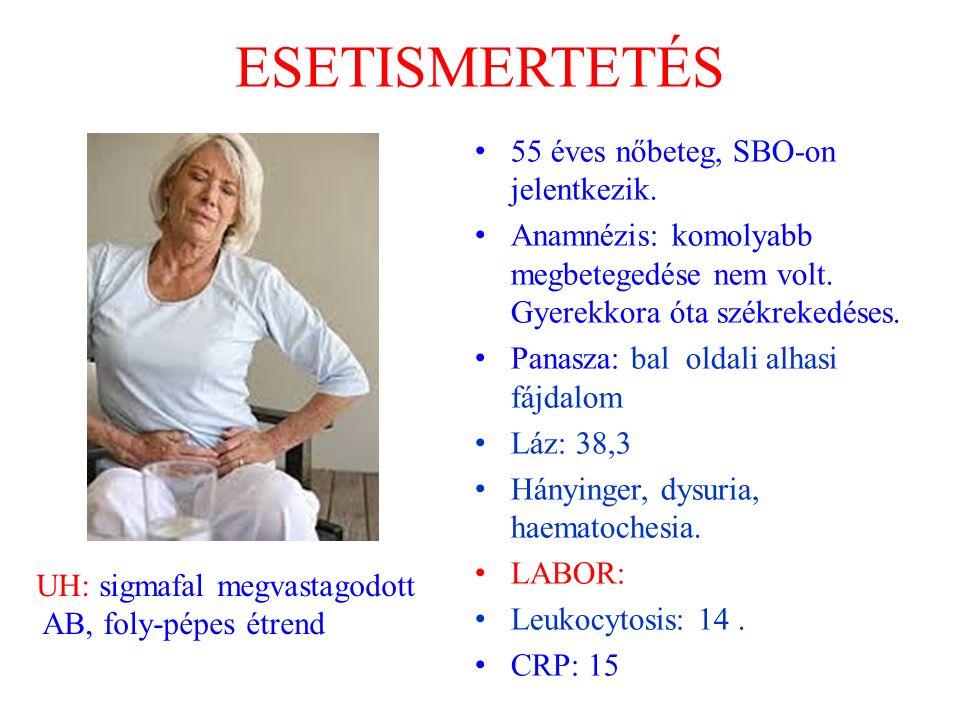 ESETISMERTETÉS 55 éves nőbeteg, SBO-on jelentkezik.