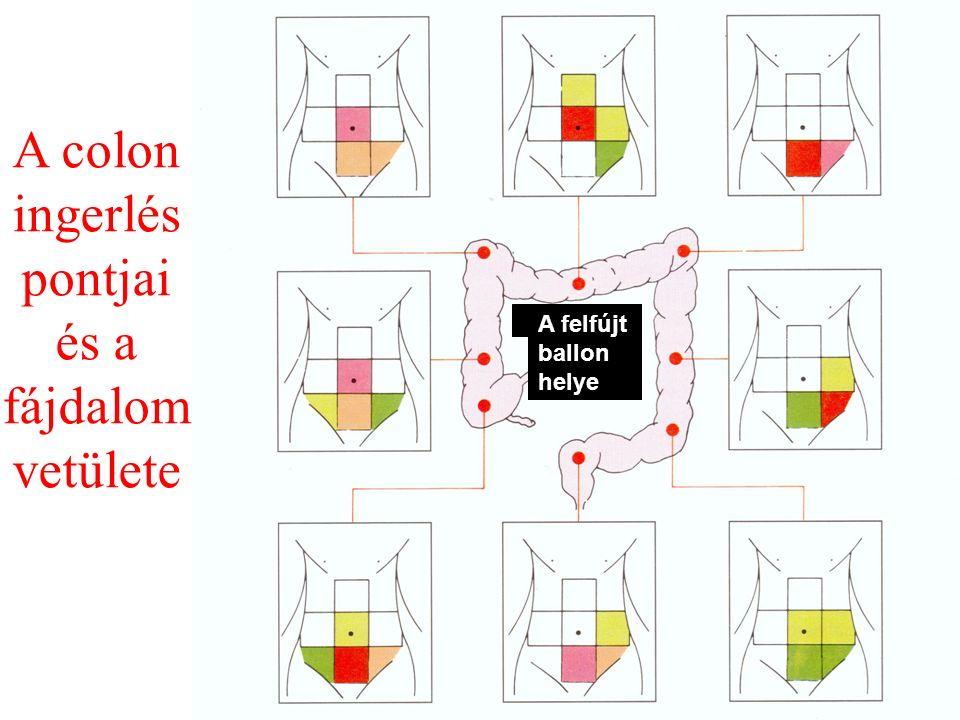 A colon ingerlés pontjai és a fájdalom vetülete A felfújt ballon helye