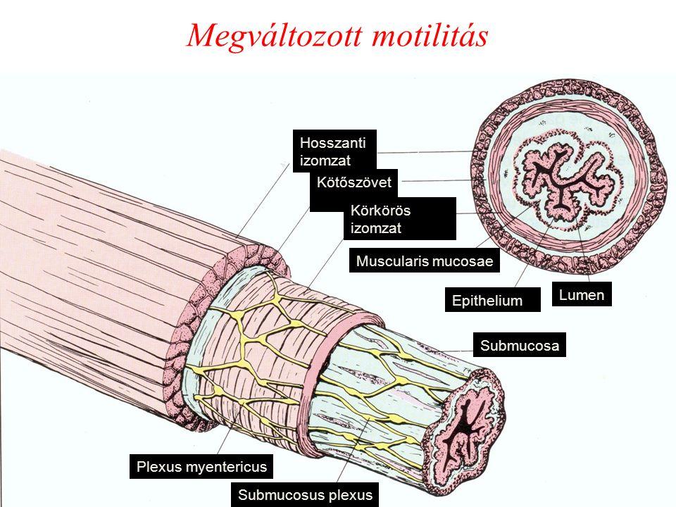 Megváltozott motilitás Hosszanti izomzat Kötőszövet Körkörös izomzat Plexus myentericus Submucosus plexus Submucosa Epithelium Muscularis mucosae Lumen