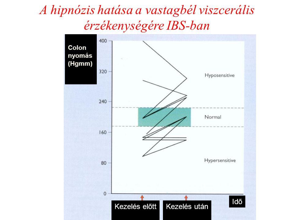 A hipnózis hatása a vastagbél viszcerális érzékenységére IBS-ban Colon nyomás (Hgmm) Kezelés előttKezelés után Idő
