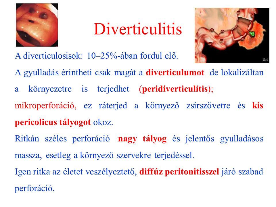 Diverticulitis A diverticulosisok: 10–25%-ában fordul elő. A gyulladás érintheti csak magát a diverticulumot, de lokalizáltan a környezetre is terjedh