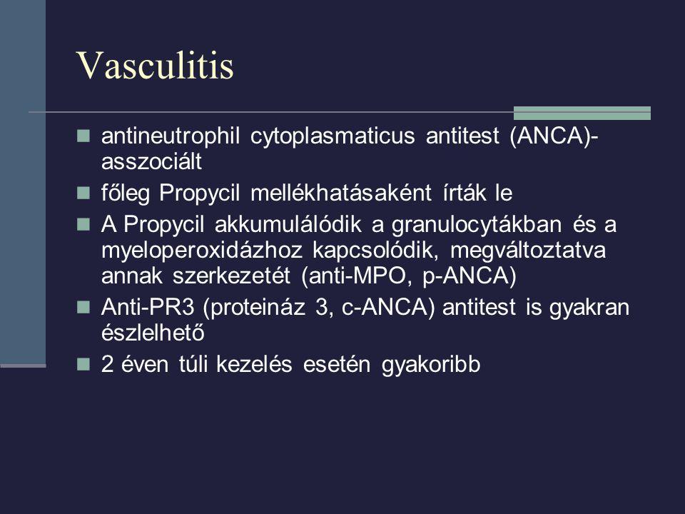 Vasculitis antineutrophil cytoplasmaticus antitest (ANCA)- asszociált főleg Propycil mellékhatásaként írták le A Propycil akkumulálódik a granulocytákban és a myeloperoxidázhoz kapcsolódik, megváltoztatva annak szerkezetét (anti-MPO, p-ANCA) Anti-PR3 (proteináz 3, c-ANCA) antitest is gyakran észlelhető 2 éven túli kezelés esetén gyakoribb