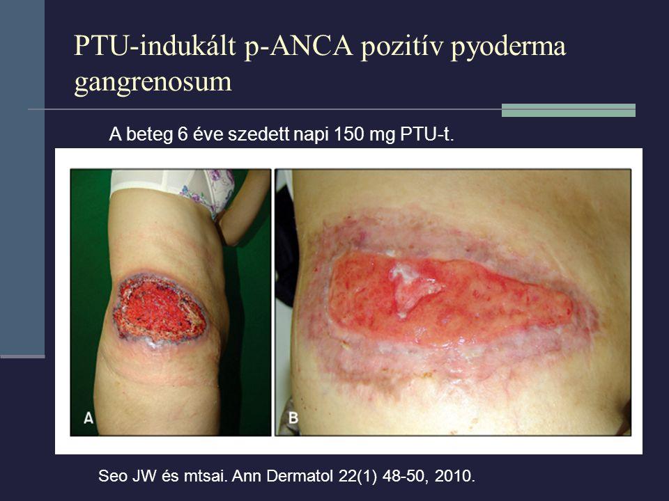 PTU-indukált p-ANCA pozitív pyoderma gangrenosum Seo JW és mtsai. Ann Dermatol 22(1) 48-50, 2010. A beteg 6 éve szedett napi 150 mg PTU-t.