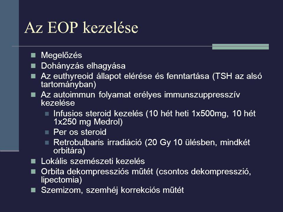 Az EOP kezelése Megelőzés Dohányzás elhagyása Az euthyreoid állapot elérése és fenntartása (TSH az alsó tartományban) Az autoimmun folyamat erélyes immunszuppresszív kezelése Infusios steroid kezelés (10 hét heti 1x500mg, 10 hét 1x250 mg Medrol) Per os steroid Retrobulbaris irradiáció (20 Gy 10 ülésben, mindkét orbitára) Lokális szemészeti kezelés Orbita dekompressziós műtét (csontos dekompresszió, lipectomia) Szemizom, szemhéj korrekciós műté t