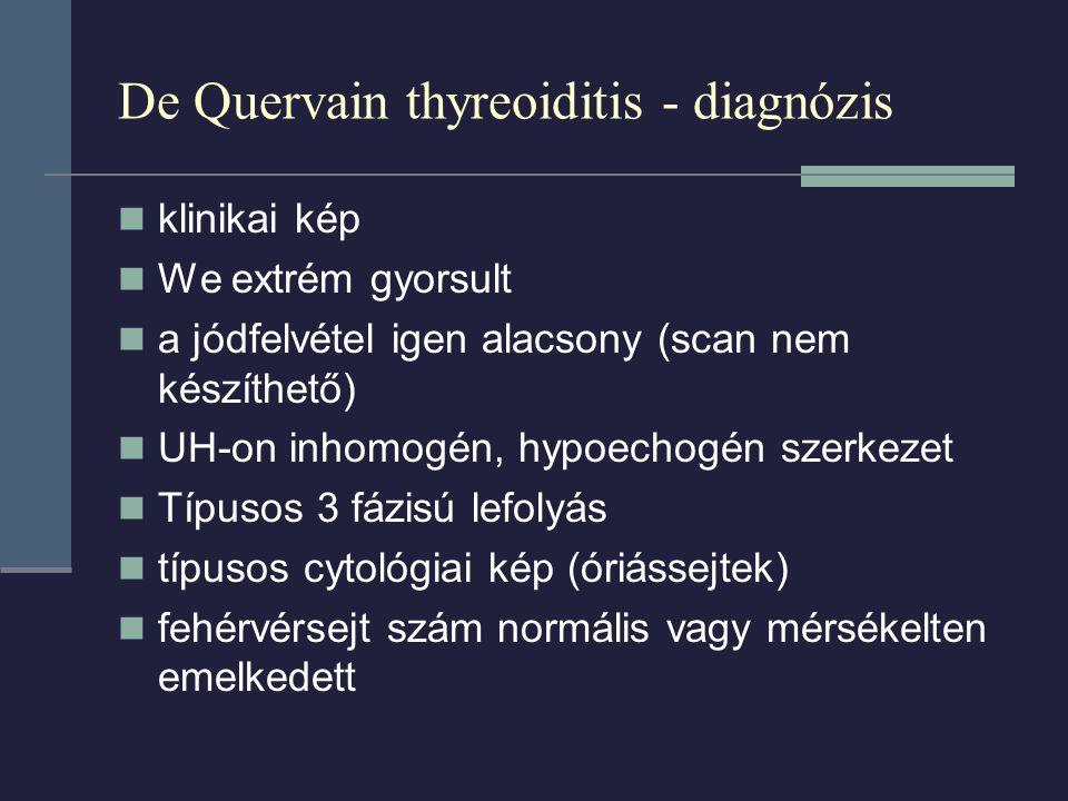 De Quervain thyreoiditis - diagnózis klinikai kép We extrém gyorsult a jódfelvétel igen alacsony (scan nem készíthető) UH-on inhomogén, hypoechogén szerkezet Típusos 3 fázisú lefolyás típusos cytológiai kép (óriássejtek) fehérvérsejt szám normális vagy mérsékelten emelkedett