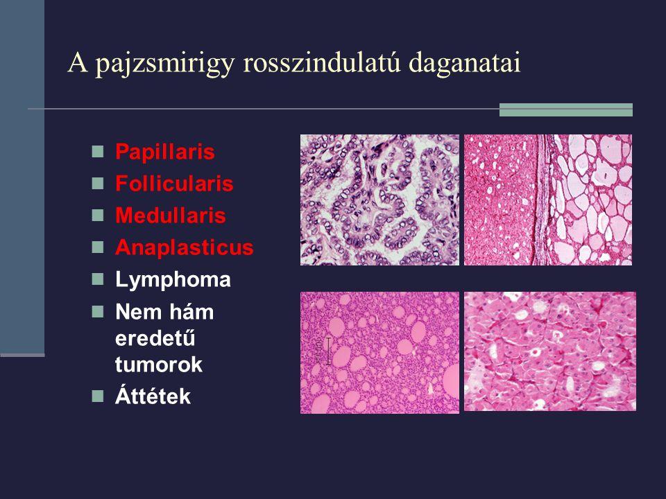 A pajzsmirigy rosszindulatú daganatai Papillaris Follicularis Medullaris Anaplasticus Lymphoma Nem hám eredetű tumorok Áttétek