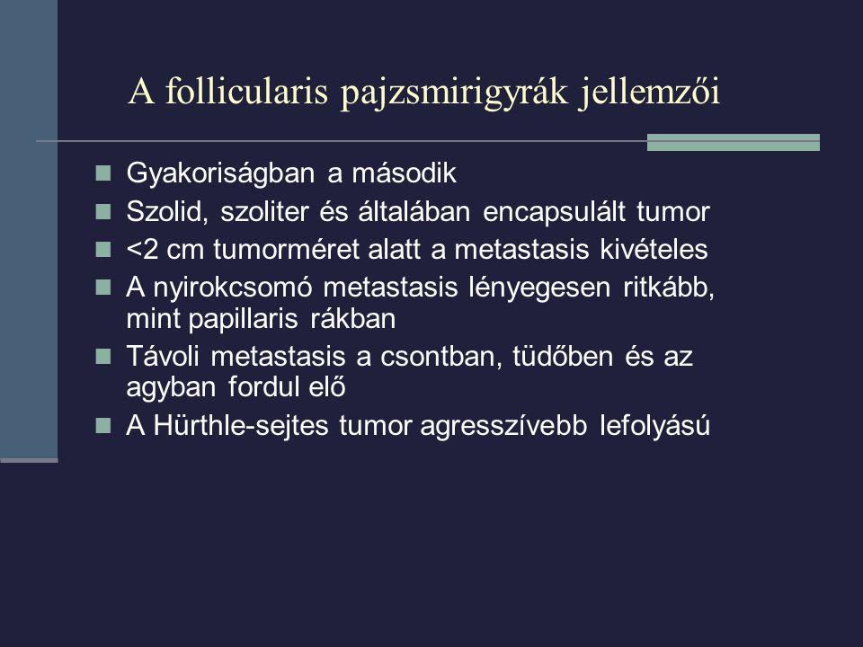 A follicularis pajzsmirigyrák jellemzői Gyakoriságban a második Szolid, szoliter és általában encapsulált tumor <2 cm tumorméret alatt a metastasis kivételes A nyirokcsomó metastasis lényegesen ritkább, mint papillaris rákban Távoli metastasis a csontban, tüdőben és az agyban fordul elő A Hürthle-sejtes tumor agresszívebb lefolyású