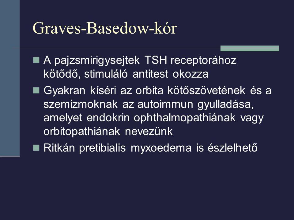 Graves-Basedow-kór A pajzsmirigysejtek TSH receptorához kötődő, stimuláló antitest okozza Gyakran kíséri az orbita kötőszövetének és a szemizmoknak az autoimmun gyulladása, amelyet endokrin ophthalmopathiának vagy orbitopathiának nevezünk Ritkán pretibialis myxoedema is észlelhető