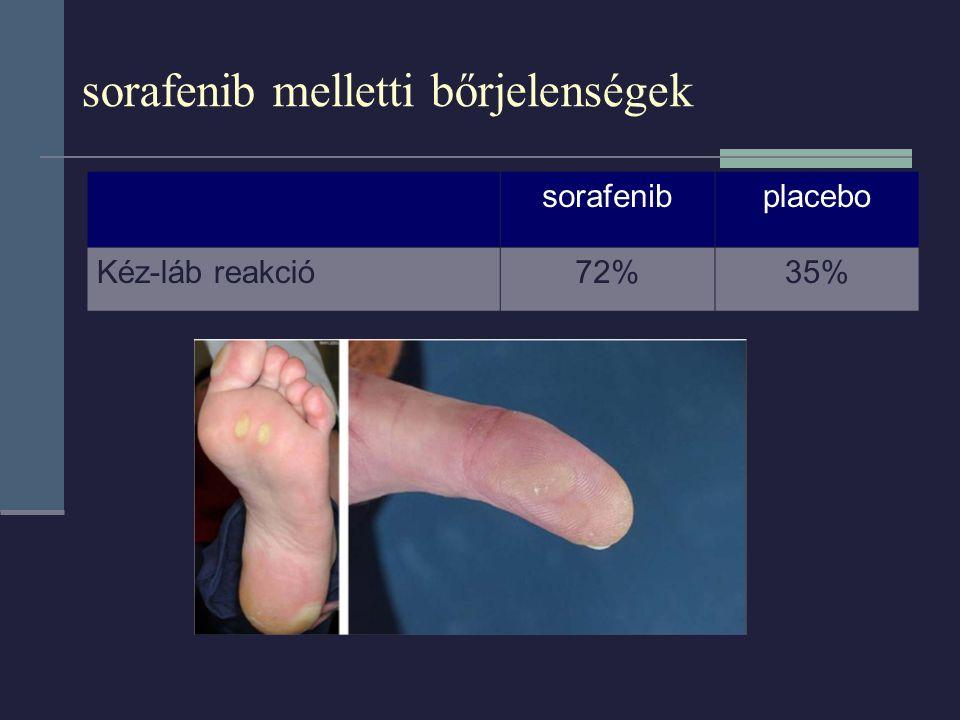 sorafenib melletti bőrjelenségek sorafenibplacebo Kéz-láb reakció72%35%