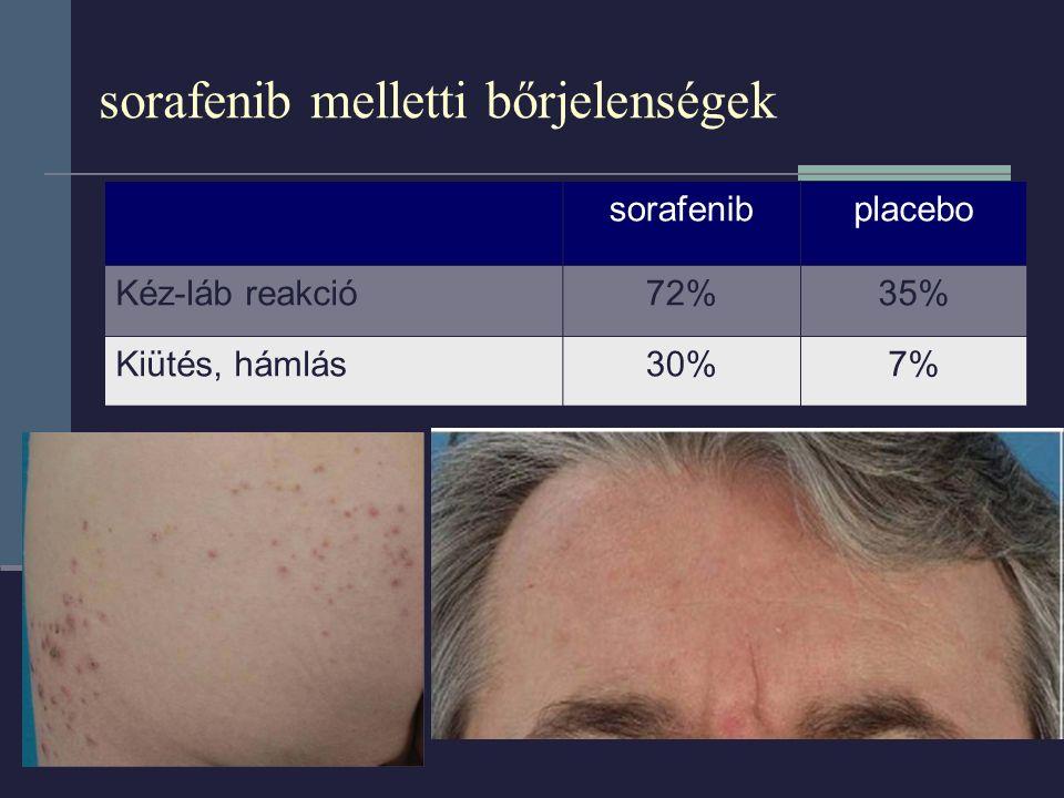 sorafenib melletti bőrjelenségek sorafenibplacebo Kéz-láb reakció72%35% Kiütés, hámlás30%7%