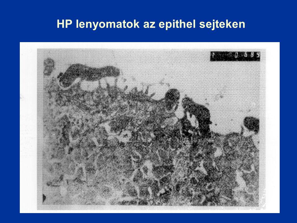 HP lenyomatok az epithel sejteken