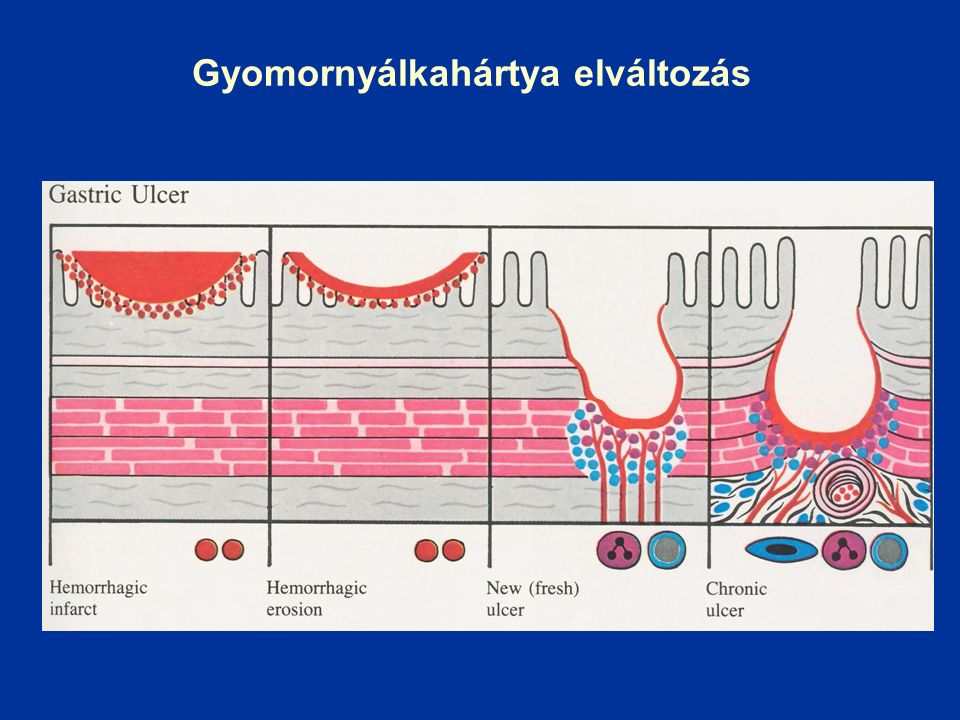 Fekélybetegség Epidemiologia - 1850 előtt ritka kórbonctani lelet - 1850-1900 inkább ulcus ventriculi - 1900-1960 prevalencia fokozatosan nőtt, majd csökkent, túlsúlyos ulcus duodeni előfordulással (H 2 blokkoló éra előtt) - 1970 óta ulcus duodeni csökkent, ulcus ventriculi nem változott - USA 9,4 % (ffi.