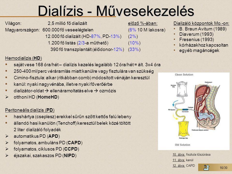 16/30 Dialízis - Művesekezelés T Világon:2,5 millió fő dializáltelőző %-ában: Magyarországon:600.000 fő veseelégtelen(6% 10 M lakosra) 12.000 fő diali