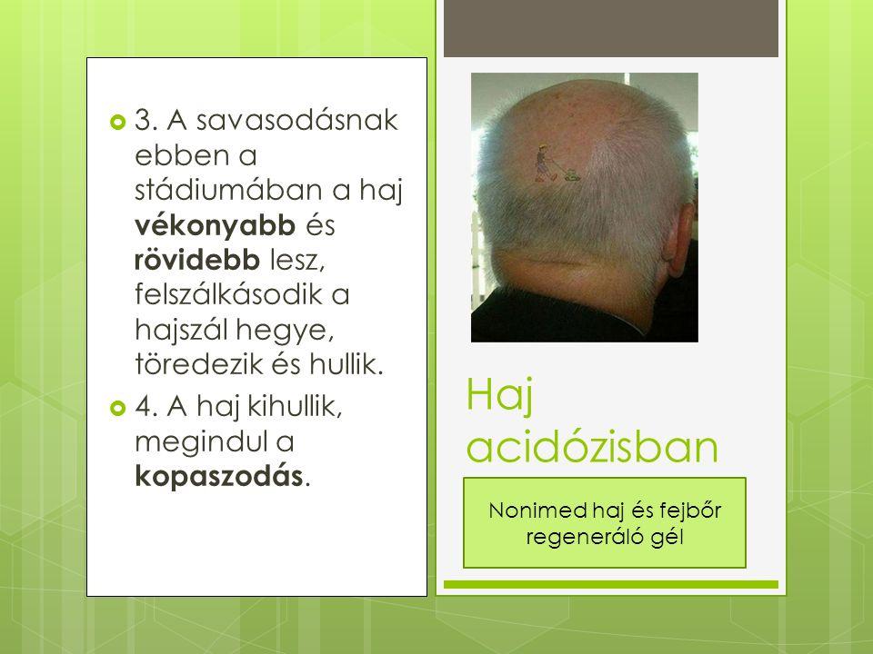  3. A savasodásnak ebben a stádiumában a haj vékonyabb és rövidebb lesz, felszálkásodik a hajszál hegye, töredezik és hullik.  4. A haj kihullik, me