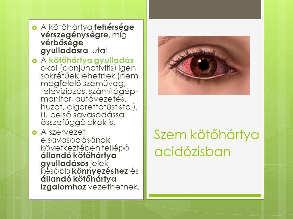  A kötőhártya fehérsége vérszegénységre, míg vérbősége gyulladásra utal.  A kötőhártya gyulladás okai (conjunctivitis) igen sokrétűek lehetnek (nem