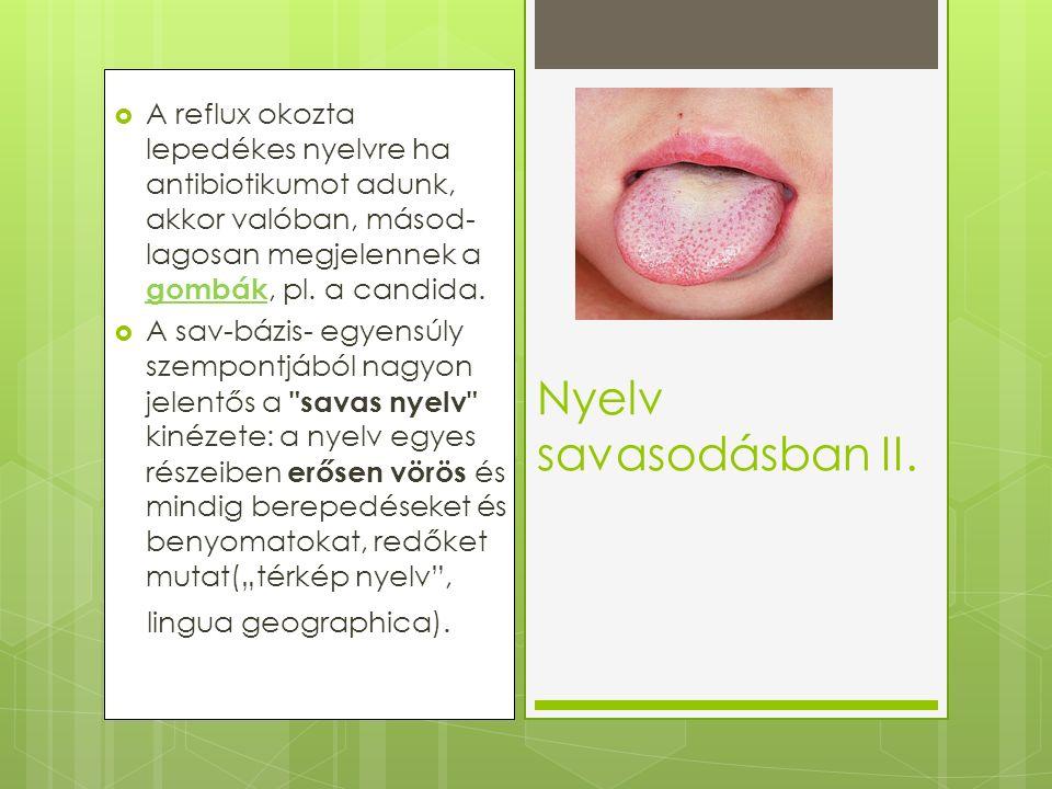  A reflux okozta lepedékes nyelvre ha antibiotikumot adunk, akkor valóban, másod- lagosan megjelennek a gombák, pl. a candida.  A sav-bázis- egyensú